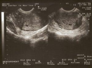 Размер плода на 3 неделе беременности