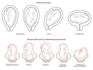 33 неделя беременности положение плода