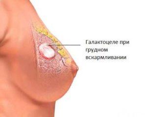 В груди уплотнение у кормящей мамы