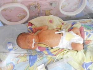 Кормление недоношенного ребенка через зонд