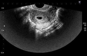 Срок беременности 6 недель размер плода