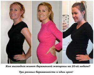 Объем живота на 20 неделе беременности