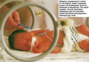 Ребенок на 35 неделе беременности родился