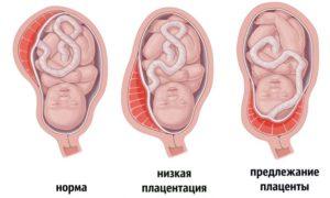 Низкое предлежание плаценты при беременности 20 недель