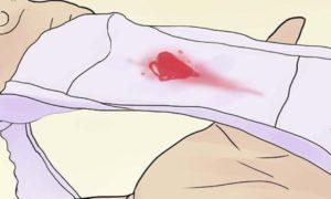 Кровотечение без болей на 12 неделе беременности