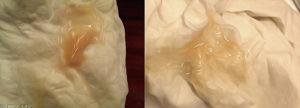 8 недель беременности выделения коричневого цвета