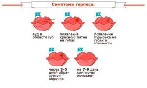 Герпес на губе при беременности 1 триместр