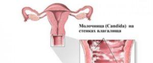 Молочница на 34 неделе беременности
