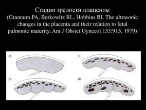 2 степень зрелости плаценты на 34 неделе беременности
