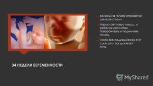 34 неделя беременности кружится голова