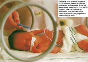Роды на 31 неделе беременности последствия