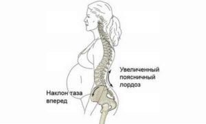Болит копчик при беременности на 20 неделе