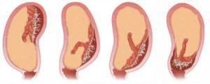 Низкая плацентация при беременности 18 недель