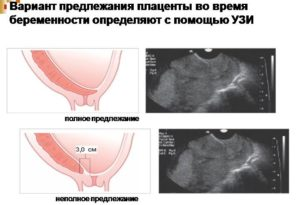 Предлежание плаценты при беременности 12 недель