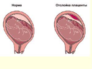 Отслойка плаценты на 19 неделе беременности