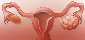 Во время овуляции болит яичник левый