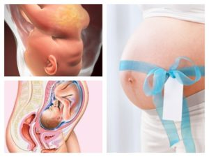 Токсикоз на 34 неделе беременности