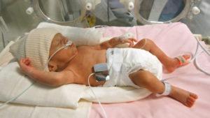30 неделя беременности преждевременные роды