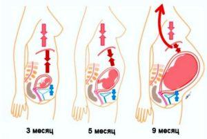 Изжога при беременности в третьем триместре
