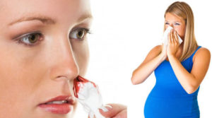 Кровь из носа при беременности второй триместр причины