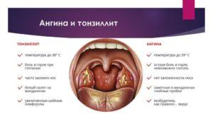 Болит горло на 5 неделе беременности