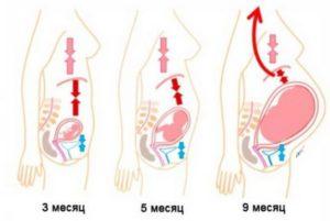 Изжога на 9 неделе беременности