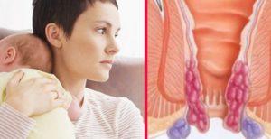 Как лечить геморрой кормящей маме