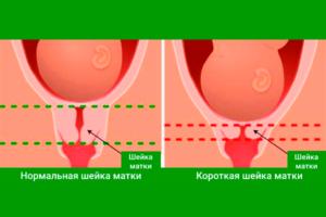 Короткая шейка матки при беременности 12 недель