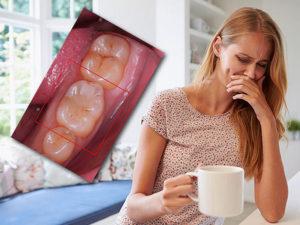 40 неделя беременности болят зубы