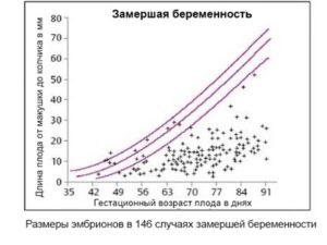 Процент замерших беременностей в первом триместре