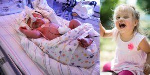 Ребенок родился на 34 неделе беременности