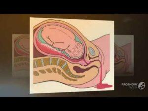 На 38 неделе беременности горло болит
