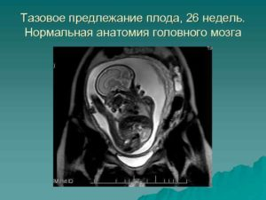 Предлежание тазовое на 20 неделе беременности