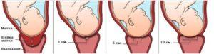 39 неделя беременности как ускорить раскрытие шейки матки