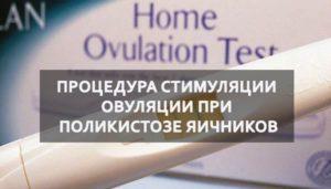 Стимуляция овуляции при поликистозе яичников