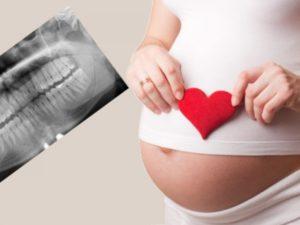 Рентген зуба при беременности 2 триместр