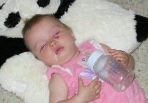 Ребенок после кормления смесью срыгивает