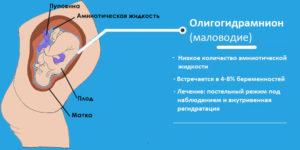 Маловодие на 35 неделе беременности