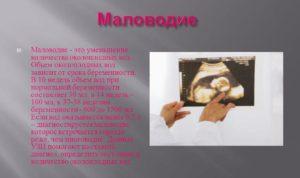 Маловодие при беременности причины и последствия 30 недель