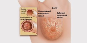 К какому врачу обращаться при лактостазе у кормящих мам