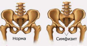 Болит лобковая кость на 38 неделе беременности