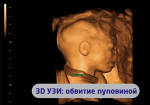 Обвитие пуповиной вокруг шеи на 20 неделе беременности
