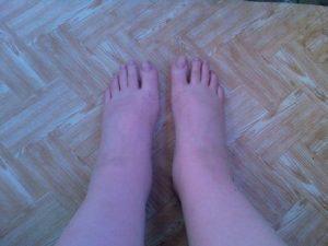 Отекли ноги при беременности что делать 38 недель