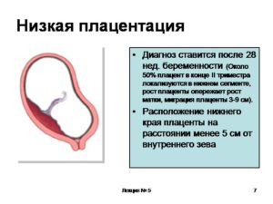 Низкая плацента при беременности 20 недель