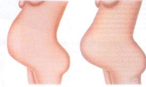 На 39 неделе беременности не опускается живот