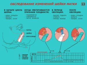 Мягкая шейка матки при беременности 30 недель