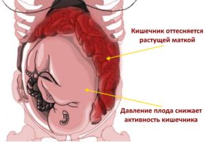 Запор на 40 неделе беременности