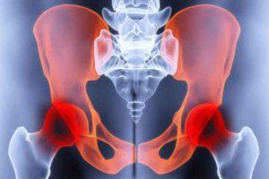 37 неделя беременности болит промеж ног и лобковая кость