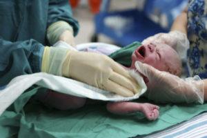 Кесарево на 36 неделе беременности последствия для ребенка