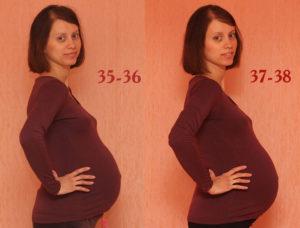 37 неделя беременности болит поясница